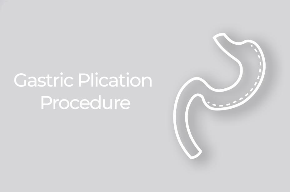 Gastric Plication Procedure